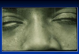 eye_disorders_2