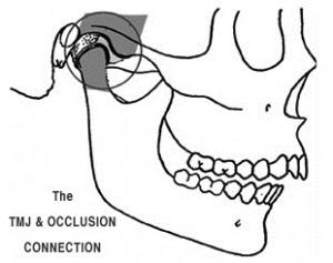 TMJ-occlusion