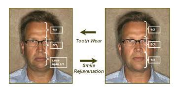 smile-rejuvenation