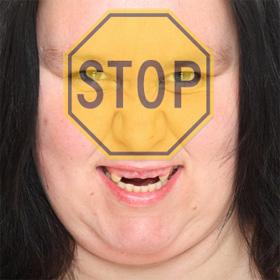 stop-teeth-grinding