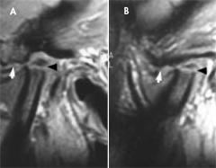 tmj-arthritis