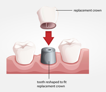 dental-crowns-and-bridges-chicago