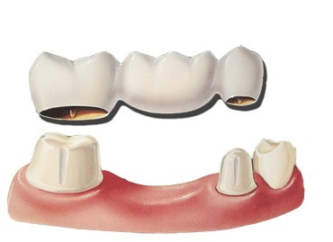 tmj-dental-bridge