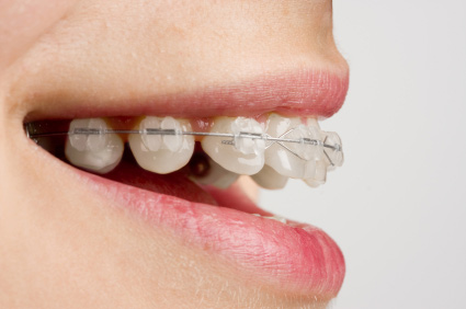 tmj-orthodontics